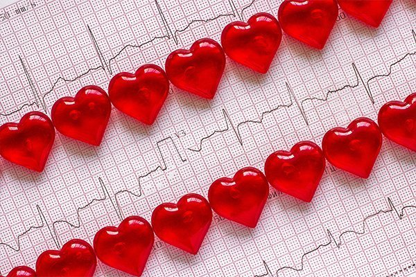 How Is a Heart Attack Different in Men and Women?